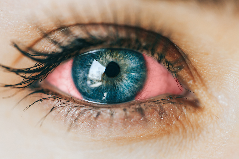 Ögoninflammation/Konjunktivit